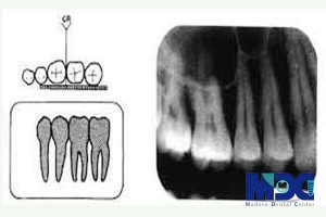 تکنیک تصویربرداری قبل کاشت ایمپلنت دندان