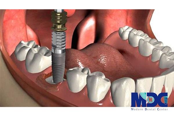 انواع کاشت ایمپلنت دندان