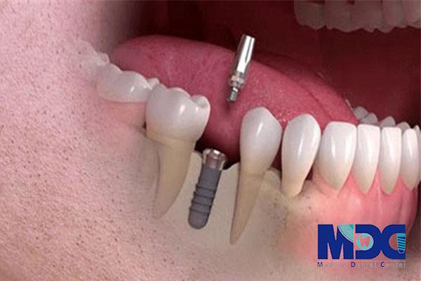 بررسی علتهای شکست ایمپلنت-کلینیک دندان پزشکی مدرن