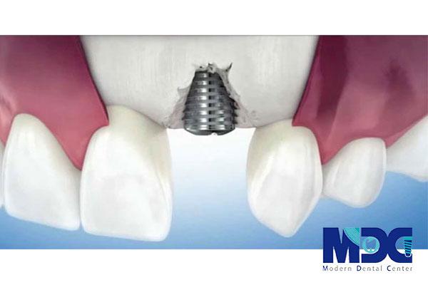 شکست ایمپلنت دندان-کلینیک دندان پزشکی مدرن