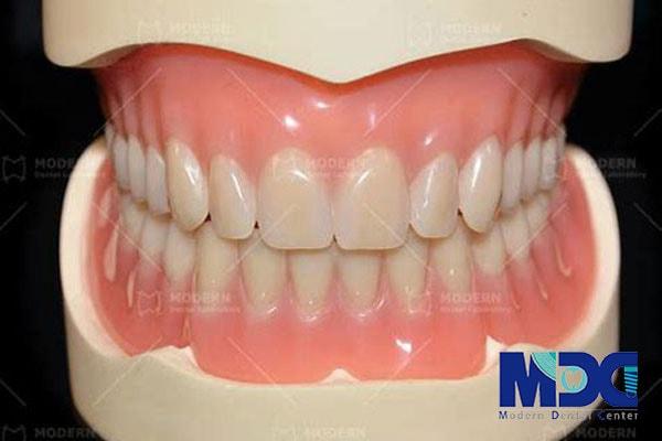دندان مصنوعی در لابراتوار-گلینیک دندان پزشکی مدرن
