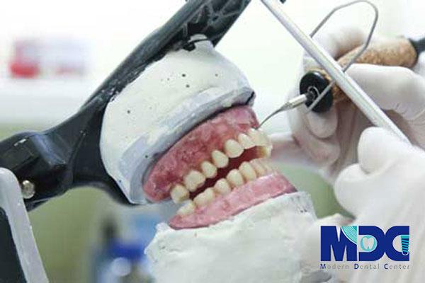 پروتز دندانی در لابراتوار تخصصی