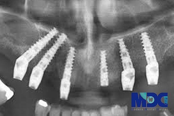 """""""کاشت-کلینیک دندان پزشکی مدرن"""