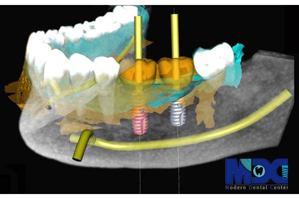 کاشت ایمپلنت دیجیتال دندان | مراحل و مزایای کاشت ایمپلنت دیجیتال