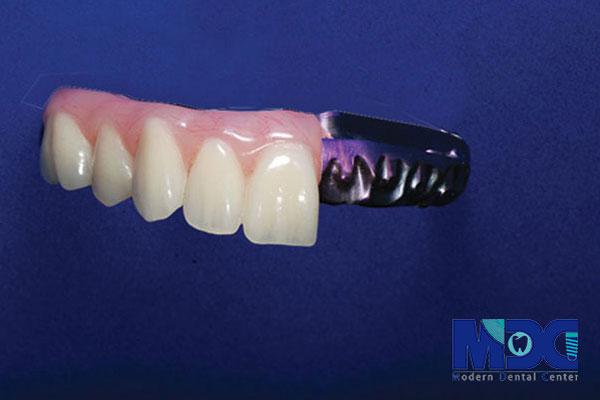 ایمپلنت هیبرید دنچر چیست
