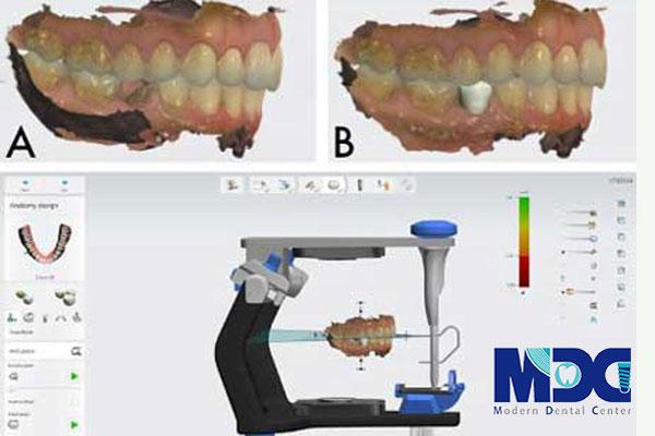 نرم افزار implant studio-کلینیک دندان پزشکی مدرن