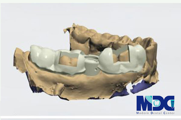 You are currently viewing کاشت ایمپلنت با نرم افزار implant studio