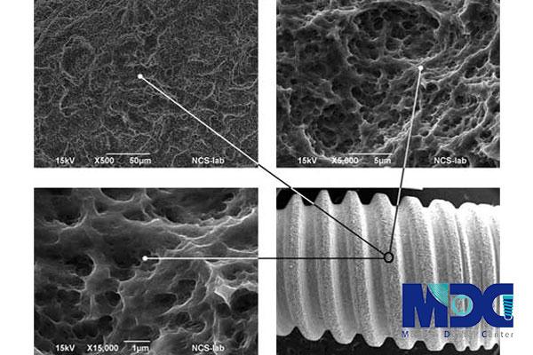 You are currently viewing استفاده از تکنولوژی نانو در کاشت ایمپلنت