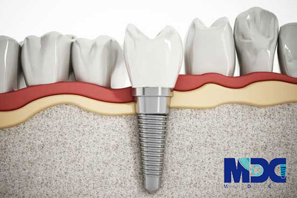 کاشت دندان -کلینیک دندان پزشکی مدرن