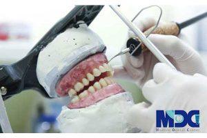 ساخت دندان مصنوعی در لابراتوار
