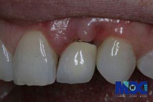 بیماری های پس از ایمپلنت دندان