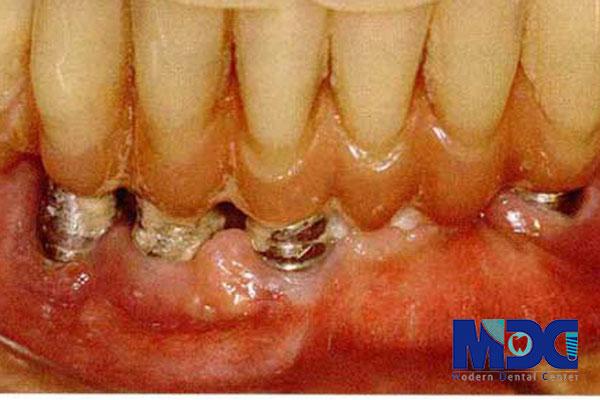بیماری های پس از ایمپلنت دندان-گلینیک دندان پزشکی مدرن