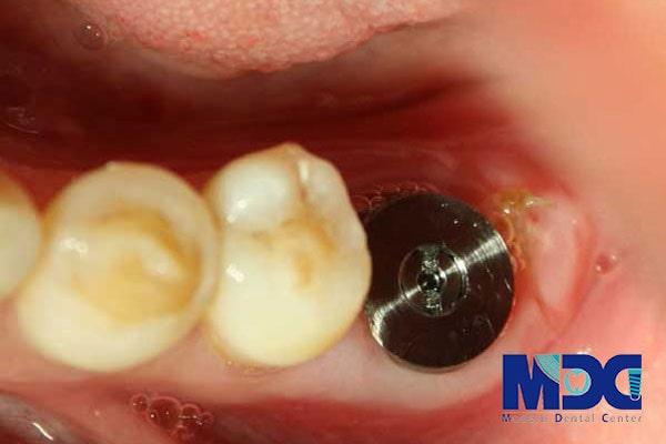 ایمپلنت برای بیماران سرطان دهان-گلینیک دندان پزشکی مدرن