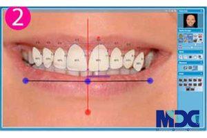 طراحی لبخند دیجیتال و تکنولوژی مربوط به زیبایی