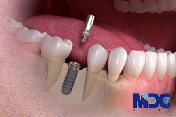 کاشت ایمپلنت دندان برای بیماران مبتلا به ایدز