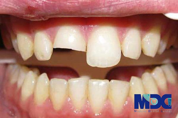 ایمپلنت دندان و عوارض موجود