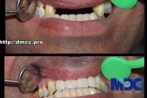 ایمپلنت دندان و رفتارهای مکانیکی