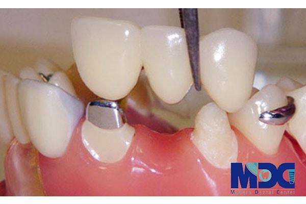 بریج در دندانپزشکی