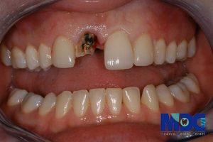 ایمپلنت دندان و عوارض موجود توسط آن
