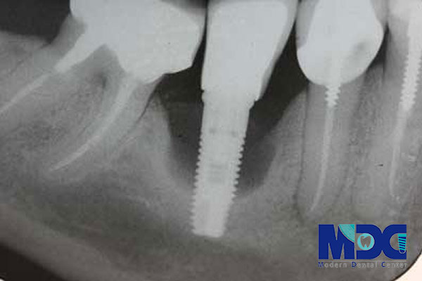 بهبود اتصال ایمپلنت دندان