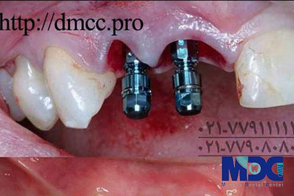 ایمپلنت دندان و رفتارهای مکانیکی-کلینیک دندان پزشکی مدرن