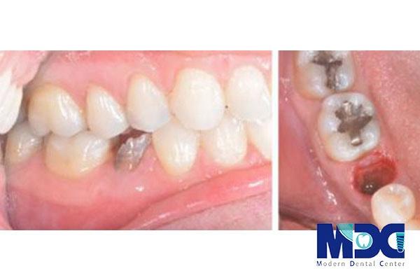 مزایای کاشت ایمپلنت نسبت به بریج دندانی