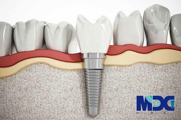 بهبود اتصال ایمپلنت دندان به استخوان فک