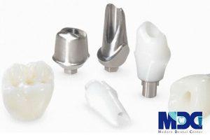 نقش اباتمنت در کاشت دندان به روش ایمپلنت