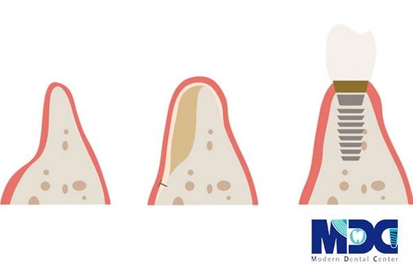 جراحی کاشت ایمپلنت-کلینیک دندان پزشکی مدرن