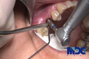 جراحی ایمپلنت با روش پیوند استخوان