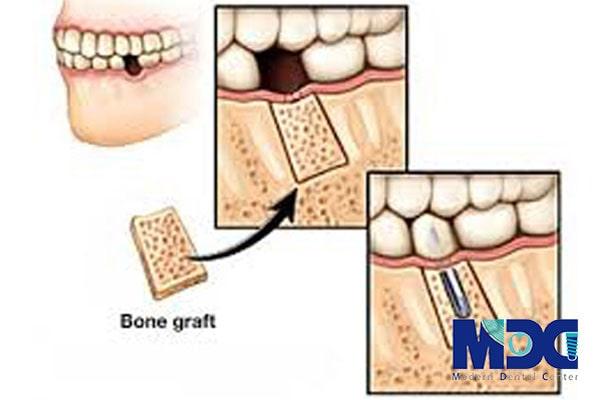 پیوند استخوان فک در ایمپلنت