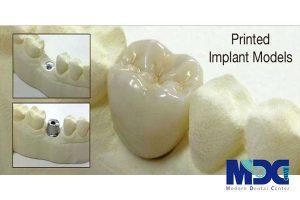 کاشت دندان یک روزه در کلینیک