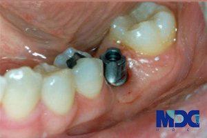 بررسی انواع اباتمنت های دندان