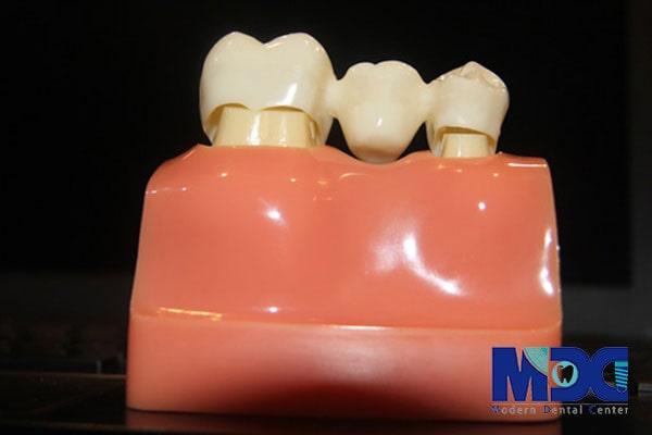 ایمپلنت جایگزین پل دندان