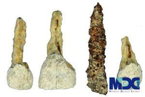 تاریخچه ایمپلنت دندان