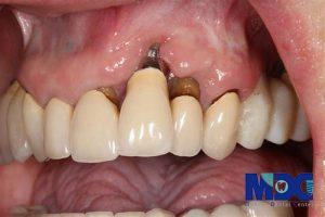 شکست ایمپلنت دندان در طرح درمان دیجیتال