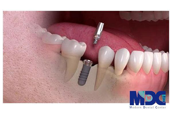 ایمپلنت دندان و بررسی فواید گسترده آن