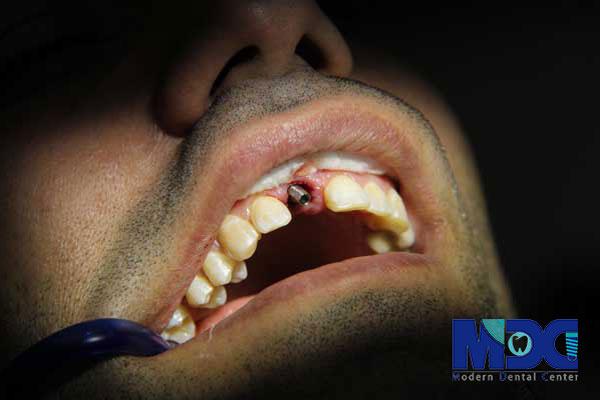 مقایسه ایمپلنت با دندان طبیعی فرد