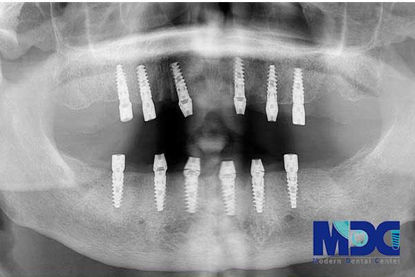 ایمپلنت دندان و بررسی فواید-کلینیک دندان پزشکی مدرن