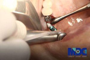 ایمپلنت دندان و کاربرد هیلینگ