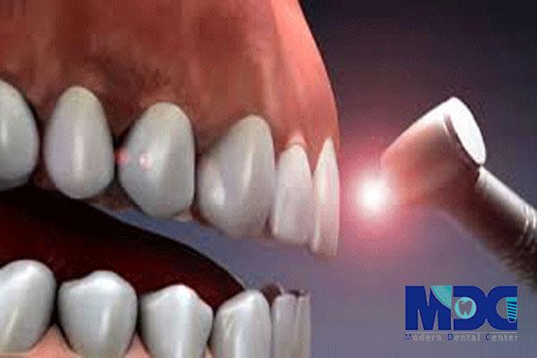 کاشت ایمپلنت با لیزر-کلینیک دندان پزشکی مدرن