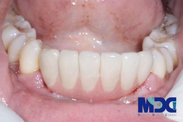 ایمپلنت فک پایین در بهترین کلینیک دندانپزشکی تهران