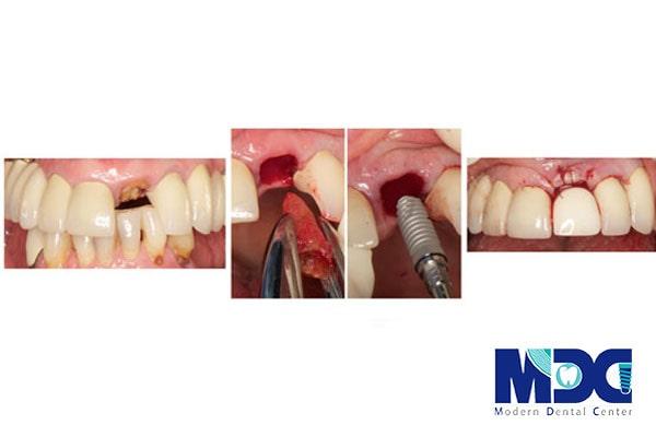 مراحل جراحی ایمپلنت-کلینیک دندان پزشکی مدرن