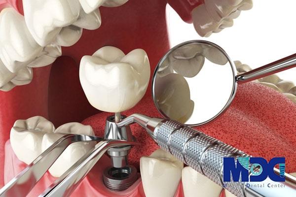 آموزش ایمپلنت دندان