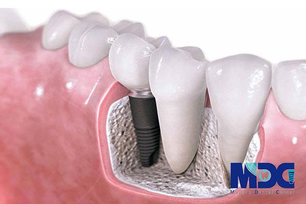 جای گذاری پایه ایمپلنت-کلینیک دندان پزشکی مدرن