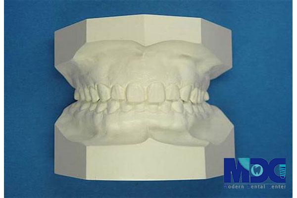 کست مطالعه-کلینیک دندان پزشکی مدرن
