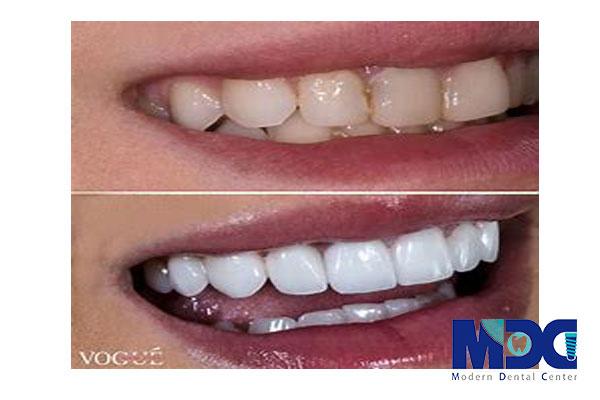 ونیر کامپوزیت-کلینیک دندان پزشکی مدرن