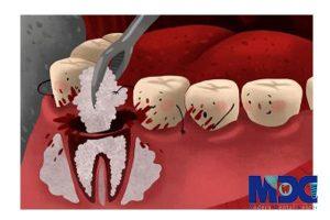 علت عوارض کاشت ایمپلنت پس از جراحی
