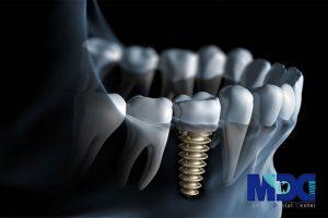 تکنولوژی های جدید دندانپزشکی