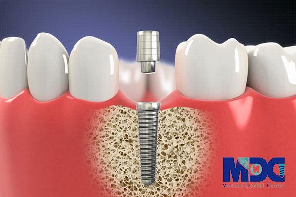 کاشت دندان و عوارض آن بعد از جراحی